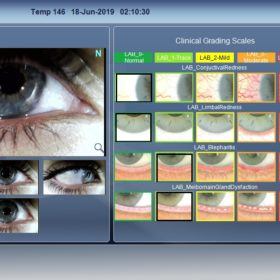 Dry Eye Grading Scales
